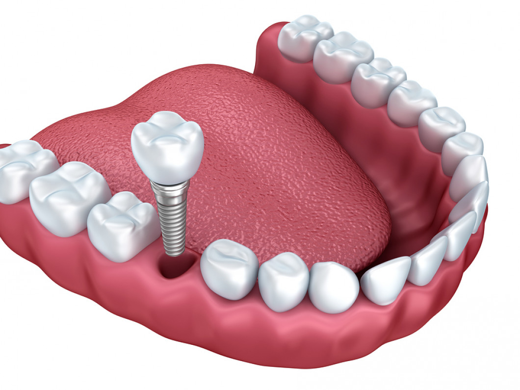 Custom Made Dental Implants in Toms River, NJ