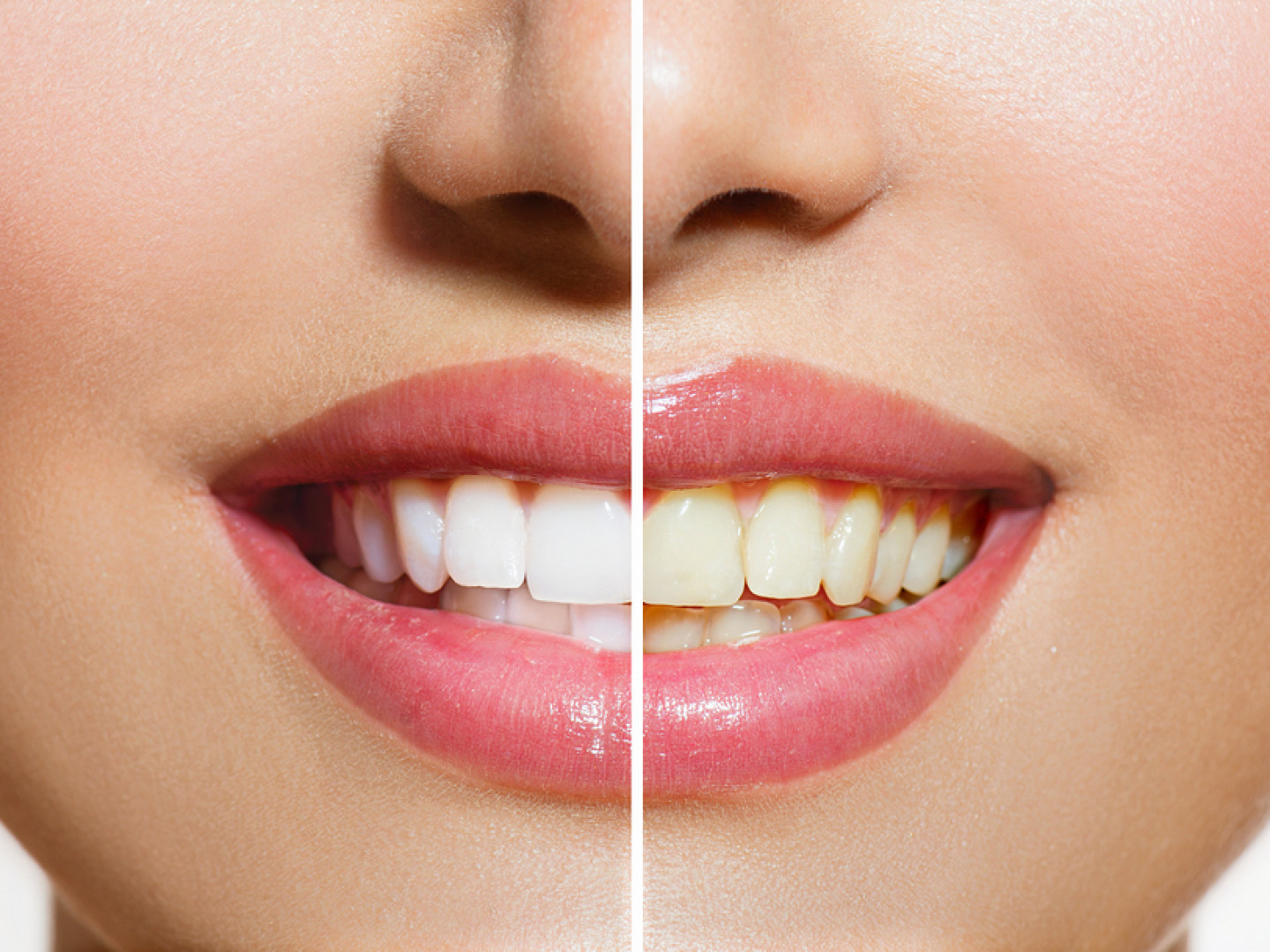 Get the Teeth Whitening Results You Want From Professionals You Can Trust